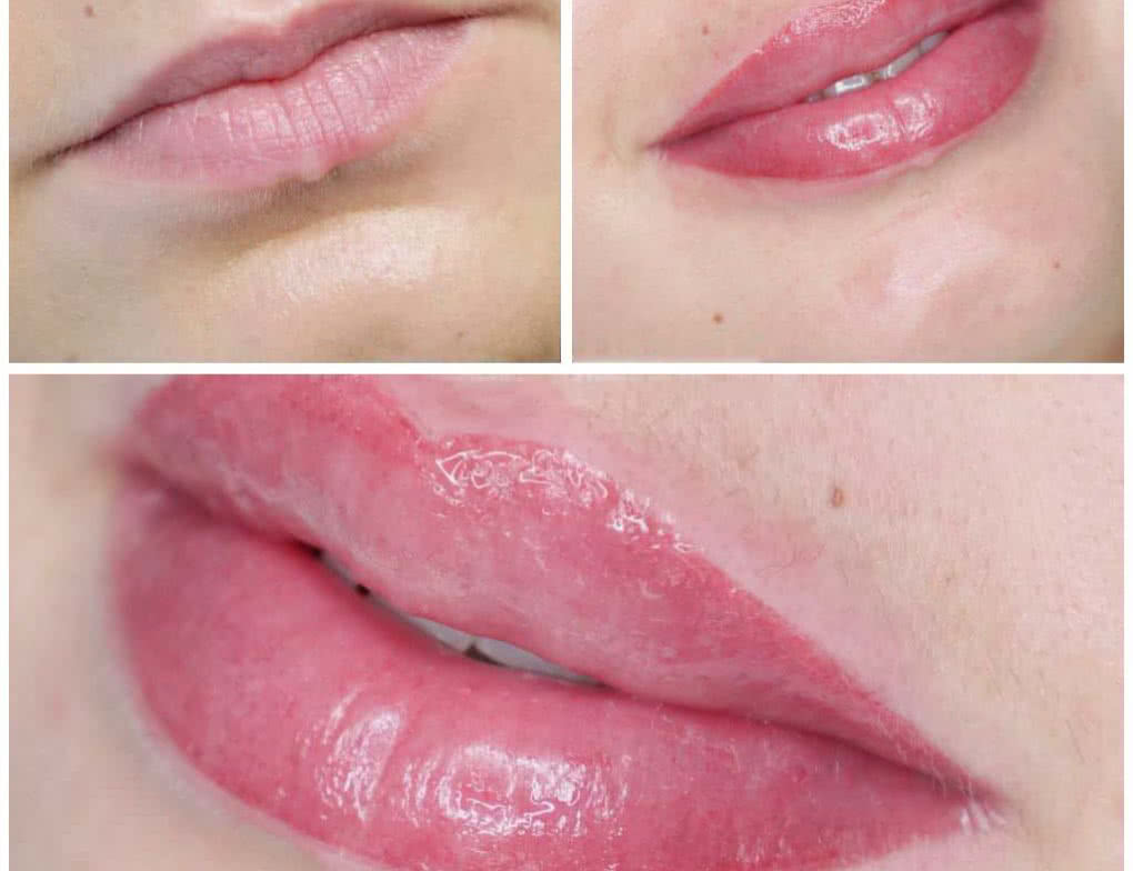 klaudia grobelska permanent makeup braunschweig 3 1020x784 - Long Time Liner Permanent Make-up der Lippen