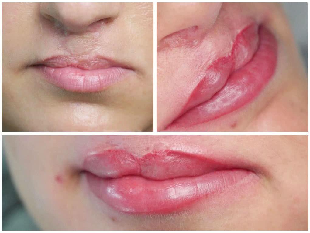 klaudia grobelska permanent makeup braunschweig 4 1020x768 - Long Time Liner Permanent Make-Up der Lippen nach OP
